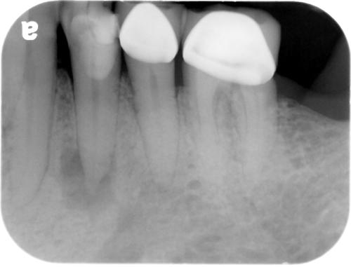 Rarefying Osteitis  U2013 Dr  G U0026 39 S Toothpix