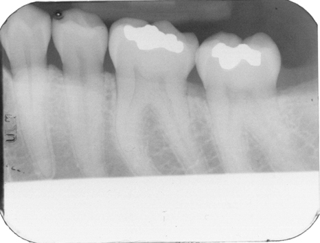 Radiographic Technique: Central Ray Entry – Dr. G's Toothpix