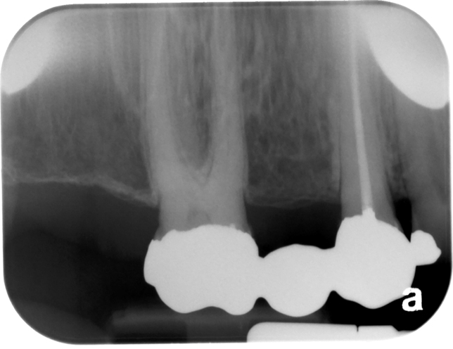 X Is For X Ray Image Distortion Dr G S Toothpix