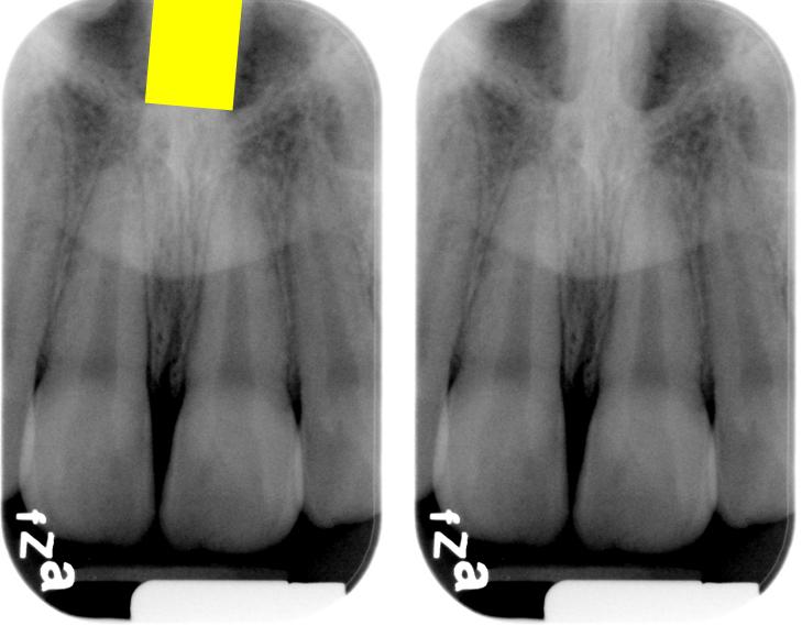 Nasal Septum Radiograph Nasal Septum Radiograph