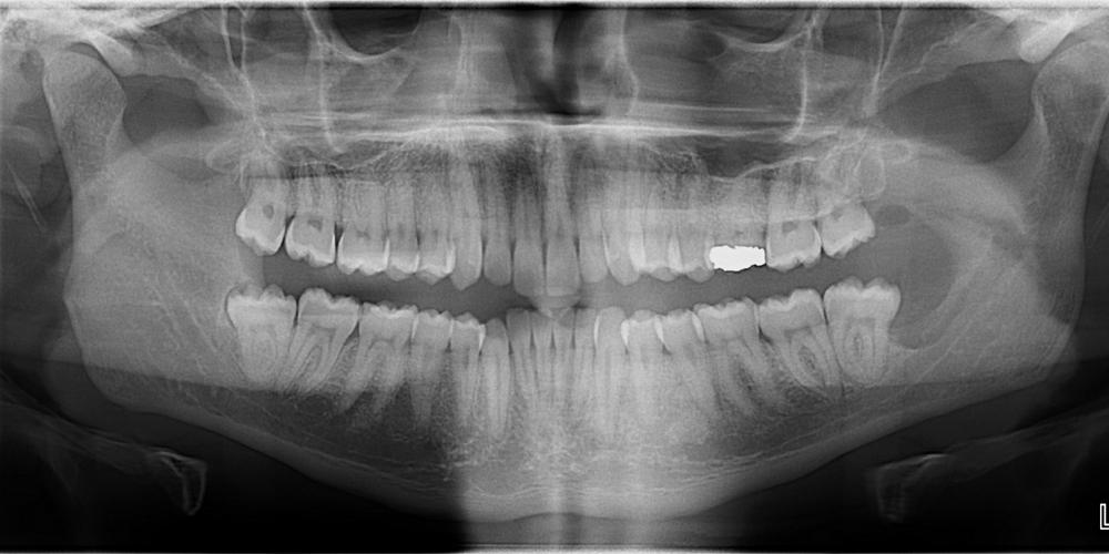 submandibular salivary gland fossa – Dr. G's Toothpix