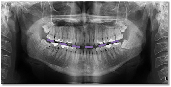 pantomograph positioning – Page 2 – Dr. G's Toothpix