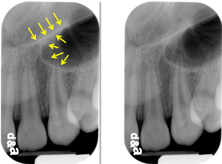 Y line of Ennis radiographs