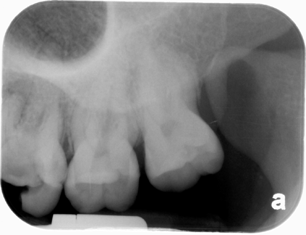 coronoid process periapical radiograph 2