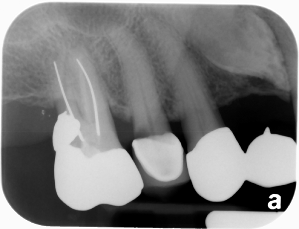 external resorption impacted maxillary canine periapical radiograph 3