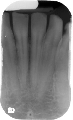 lingual foramen periapical radiograph 2