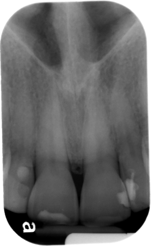 anterior nasal spine periapical
