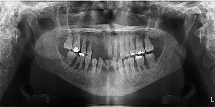 epiglottis pantomograph 2