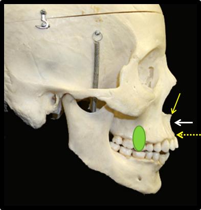 lateral cephalometric skull anatomy maxilla dry skull