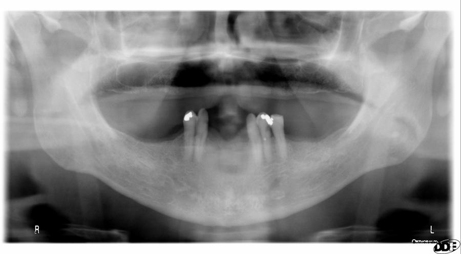 nasolabial fold pantomograph