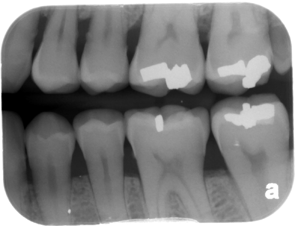 maxillary left third molar microdont bitewing radiograph