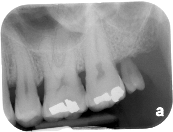 maxillary left third molar microdont periapical radiograph