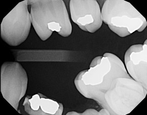 ankylosis primary molars bitewing radiograph