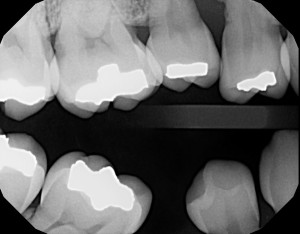 ankylosis primary second molar bitewing radiograph