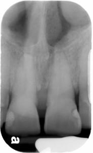 inferior nasal concha central incisor periapical radiograph