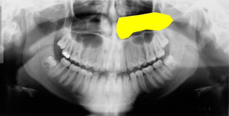 inferior nasal concha pantomograph with animation
