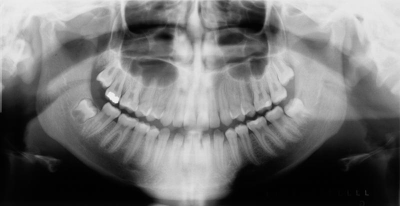 inferior nasal concha pantomograph