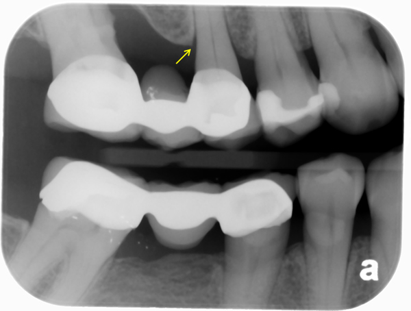 normal bone levels bitewing radiograph - widened periodontal ligament space