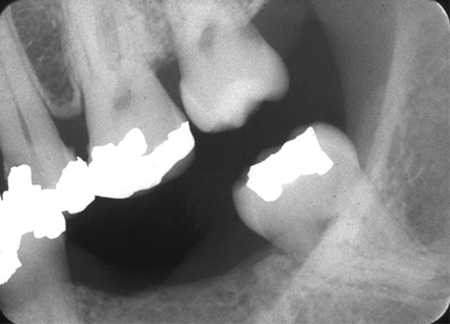 periodontal health - bitewing radiograph