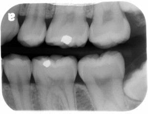 taurodontism bitewing radiograph mandibular second molar