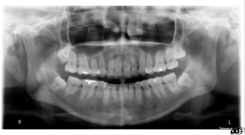 taurodontism pantomograph