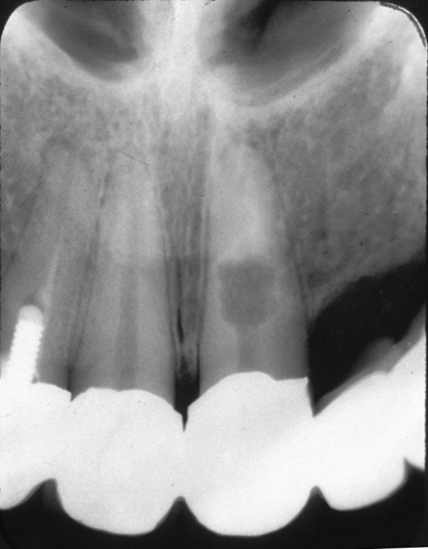 Internal Resorption Before Root Canal Therapy 1 of 2