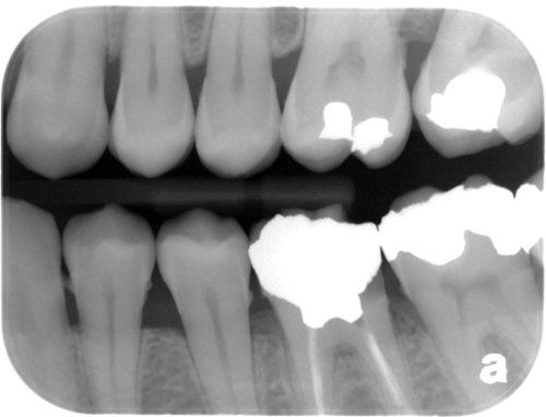 calculus bitewing radiograph