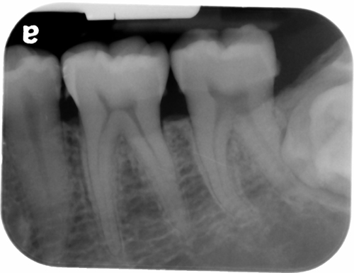 gemination periapical left third molar