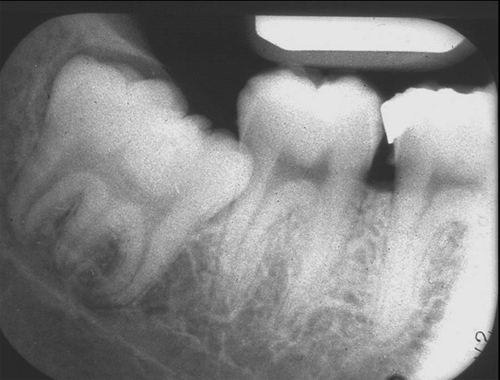 gemination periapical radiograph