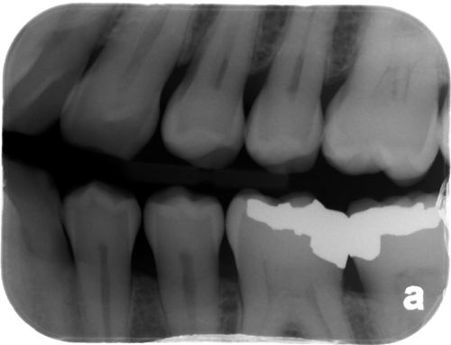 open contacts bitewing radiograph 1