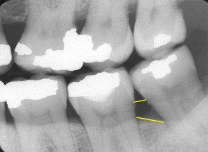 periodontal assessment vertical bone defect with animation