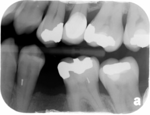 pin mandibular first premolar bitewing radiograph