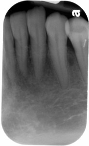 pin mandibular first premolar canine periapical radiograph