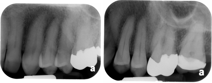 Maxillary premolar periapical radiographs. Left - note overlapping of roots and crowns causing distortion of the teeth. Right - crowns and roots not overlapped.