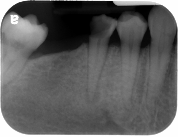 pulp stones canine and premolar periapical radiograph