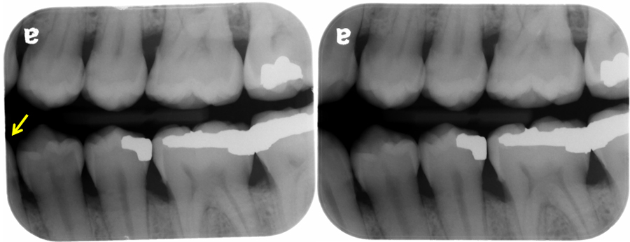Left premolar bitewing radiograph. Left - Yellow arrow showing distal half of mandibular canine not captured. Right - all teeth captured (distal half of canine, first premolar, second premolar, first molar)