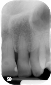 radiolucent area on crown of 9 periapical 2