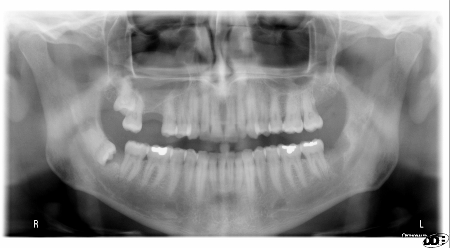 Pantomograph - mucous retention pseudocyst presents as a dome shaped radiopaque mass in the right maxillary sinus