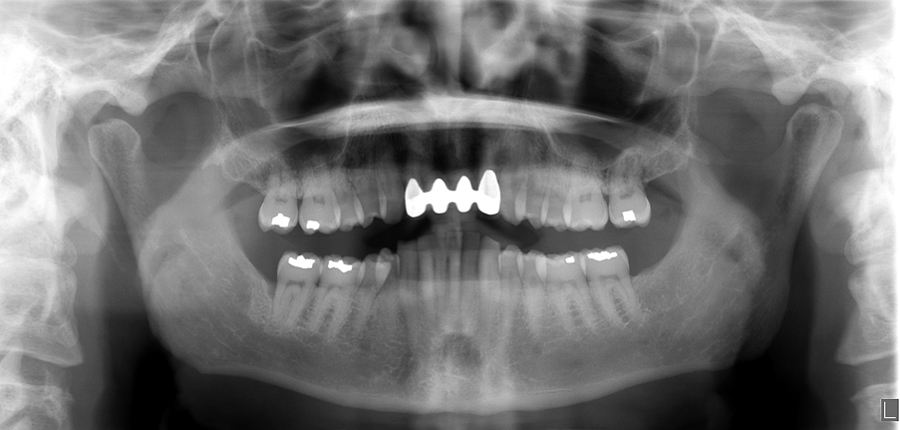 Pantomograph - palatoglossal air space seen as a radiolucent band over the roots of the maxillary teeth.