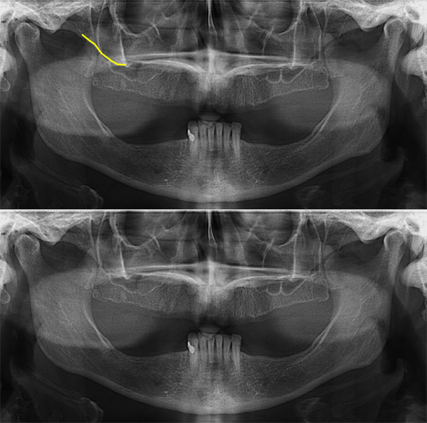 Pantomographs - inferior border of the right zygomatic bone noted with yellow line.