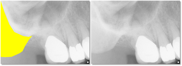 zygomatic bone periapical radiograph