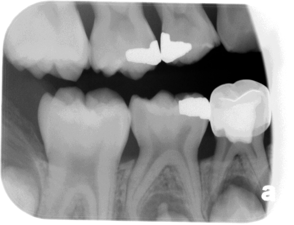 Bitewing radiograph - tip of dens evaginatus evident apical to mandibular second primary molar.