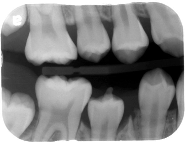 Bitewing radiograph - dens evaginatus evident as vertical enamel projection of mandibular second premolar.