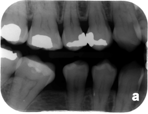 Premolar bitewing radiograph - pulp stones in the pulp chambers/root canal spaces.