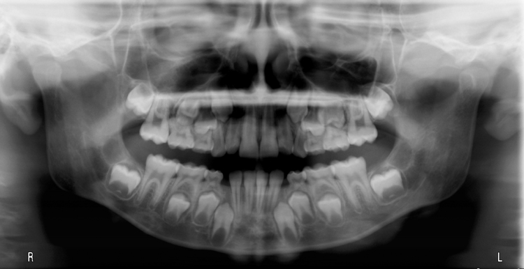 Pantomograph - gubernaculum dentis as a vertical radiolucent band superior to the crown of the developing right mandibular canine.
