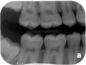 occlusal caries practice 1