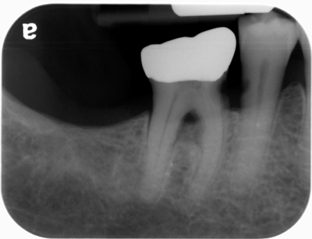root caries practice 1