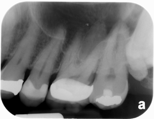 microdont supernumerary distodens periapical radiograph