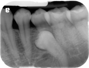 peridens periapical radiograph left