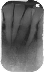 central incisors periapical radiograph lto June 2014 b
